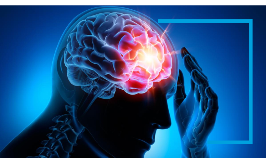 tratamiento para la epilepsia, soluciones para epilepsia