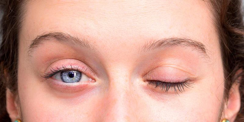 Procedimiento integral para la parálisis facial