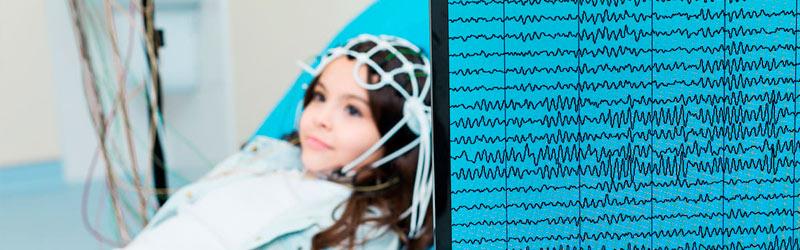 Aspectos a tener en cuenta sobre el electroencefalograma