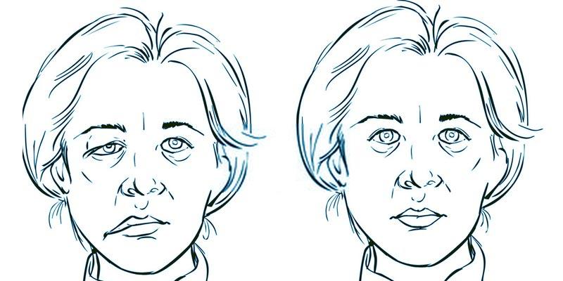 ¿Cómo se identifican los síntomas relacionados con la parálisis facial?