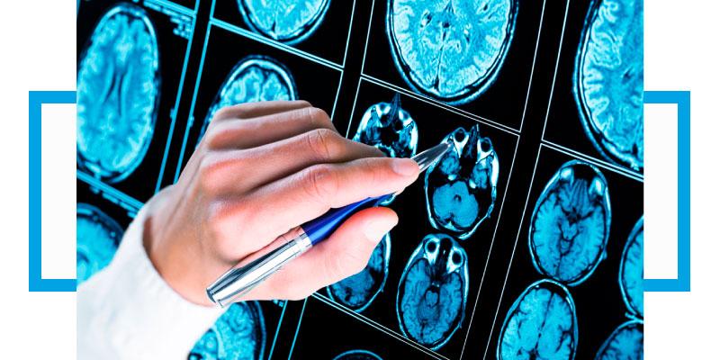 Síntomas y tratamientos para el dolor de cabeza