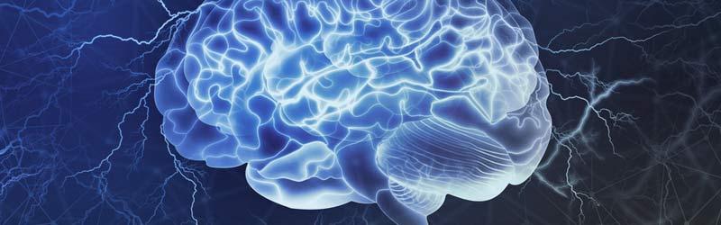 epilepsia tratamiento