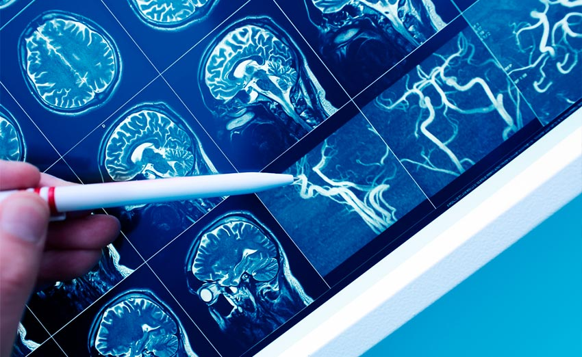 Los mapeos cerebrales