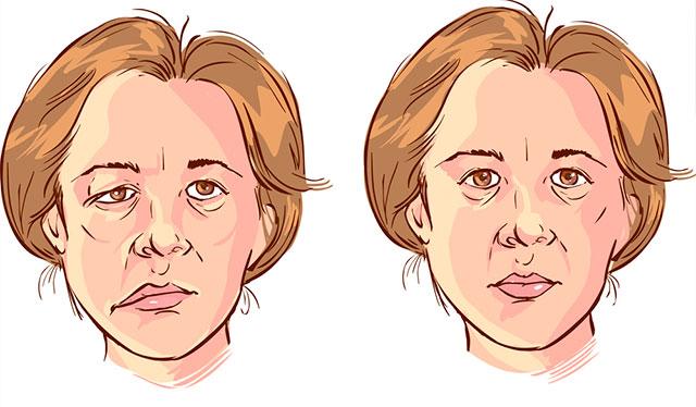Cómo recuperarse de la parálisis facial