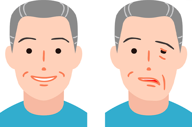 Síntomas de parálisis facial
